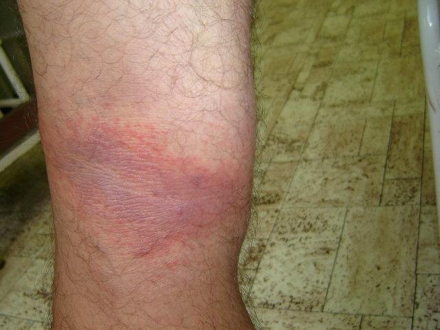 fájó vörös foltok a lábakon)