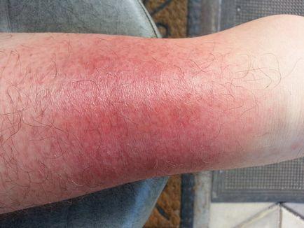 vörös folt a lábán
