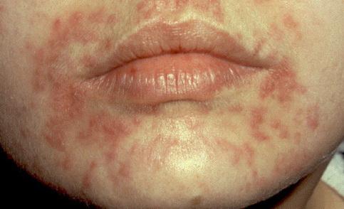 vörös foltok az arcon seborrheás dermatitis)