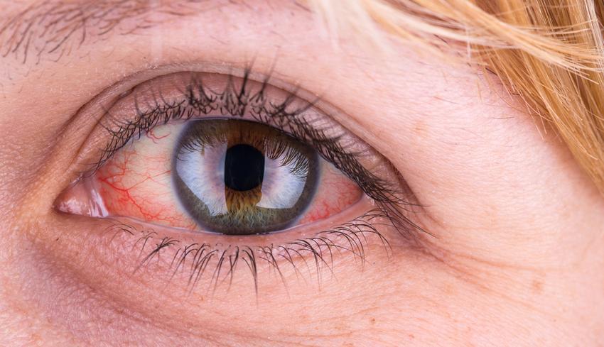 vörös foltok a szemhéjak kezelésén