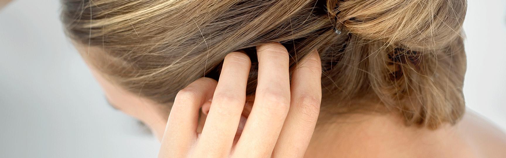 milyen kenőcsöt kell használni a fejbőr pikkelysömörére)