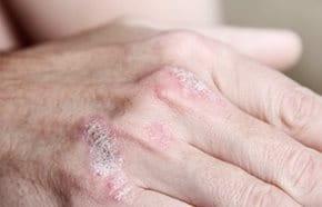 Pikkelysömör (psoriasis): bőrünk üzenete