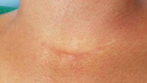 Küzdelem a szubkután akne és a vörös foltok ellen - Szépségápolás