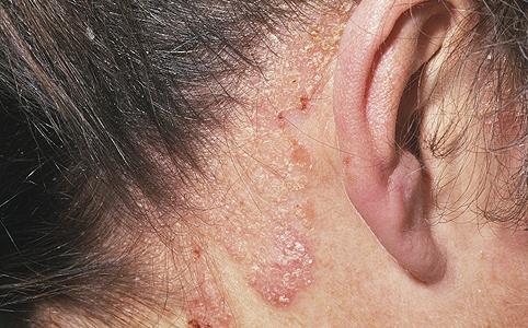 enyhíti a pikkelysömör súlyosbodását a fején
