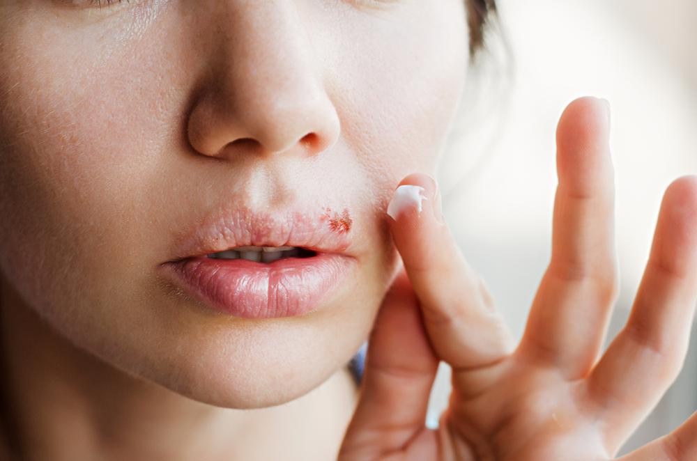 hogyan lehet gyorsan eltávolítani a vörös foltot a herpeszről)