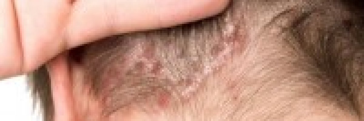 vörös folt a fejbőr kezelésén)
