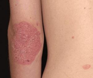pikkelysömör helyes kezelse apró piros foltok jelentek meg a gyomorfotón