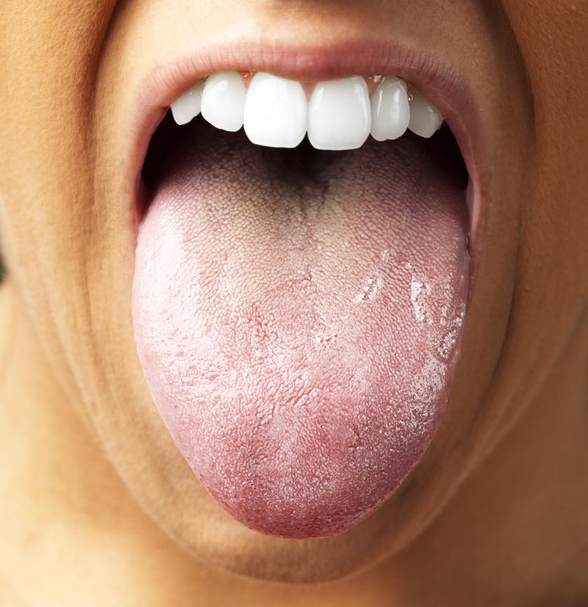 hogyan kell kezelni a nyelv pikkelysömörét)