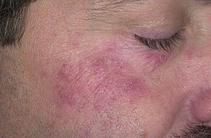 hogyan lehet izgalommal megszabadulni az arcon lévő vörös foltoktól