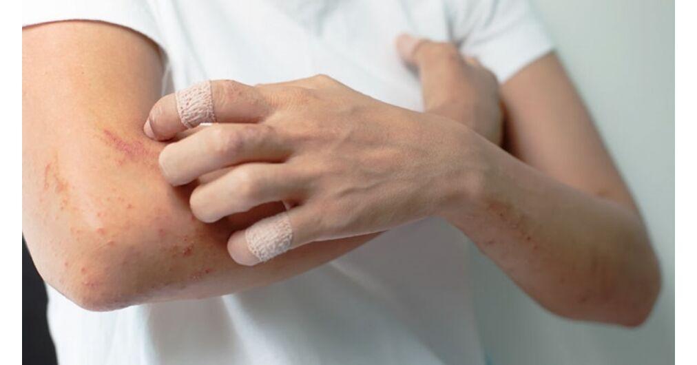 áttekintés a pikkelysömör gyógyszereiről a napon vörös foltok jelennek meg a kezeken és viszketnek