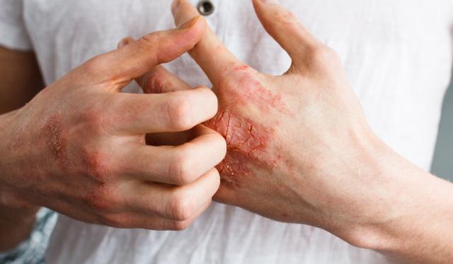kezek viszketnek és piros foltok jelennek meg, mit kell tenni