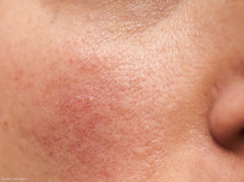 vörös foltok az arcon fájás után