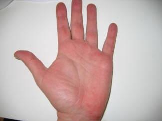 hagyományos psoriasis kezelsek