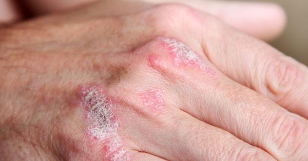 Exudatív psoriasis