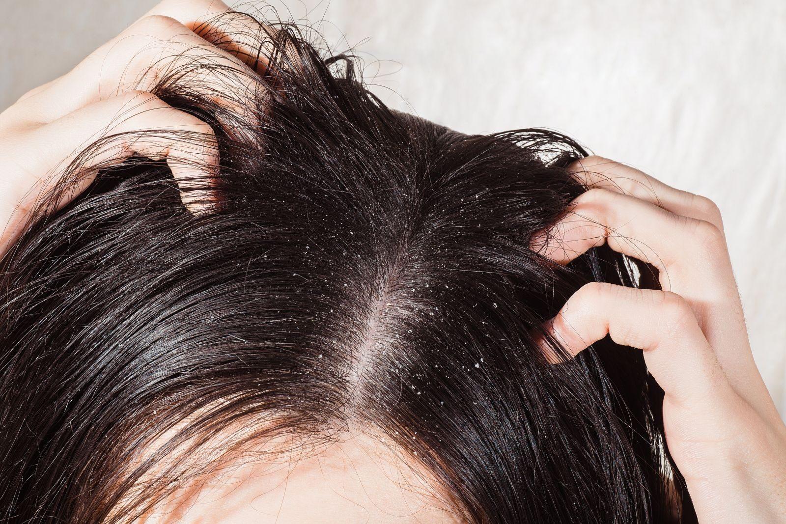mit kell tenni, ha vörös foltok vannak a fejbőrön)