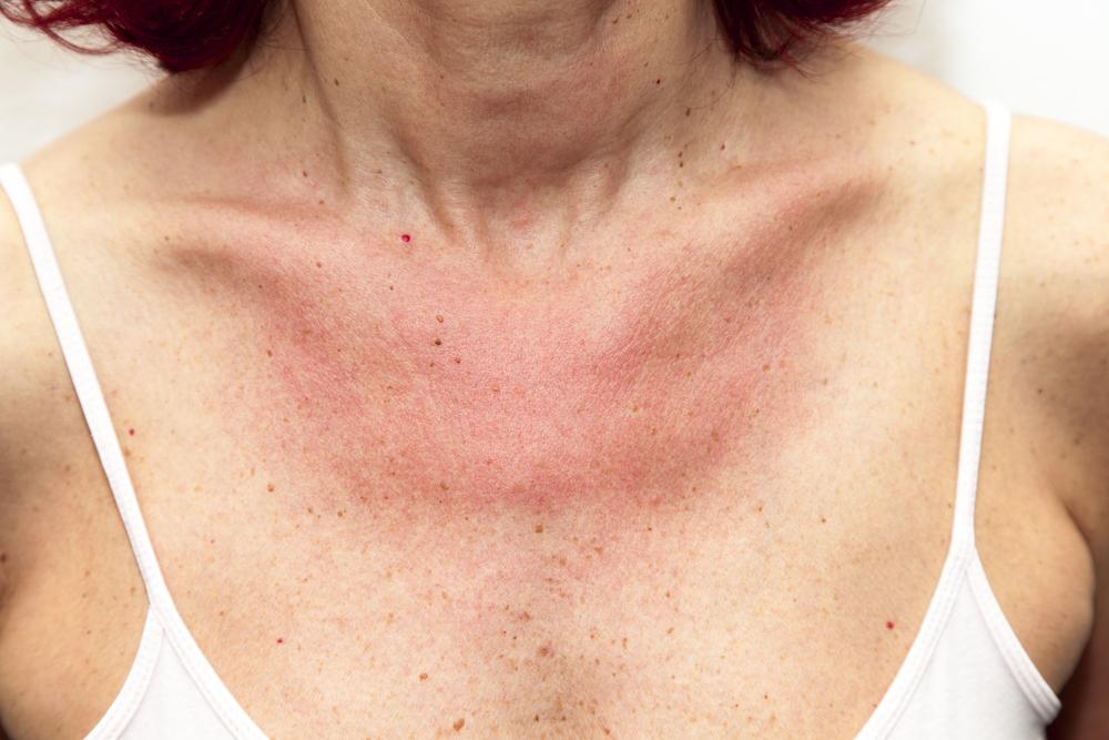 kitörések a bőrön vörös foltok formájában, viszketéssel az egész testen)