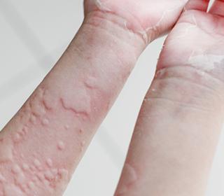 hogyan lehet gyorsan eltávolítani a vörös foltot a herpeszről
