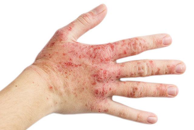 vörös durva foltok a kezeken)