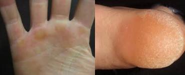 a tenyér és a lábak pikkelysömörének kezelése