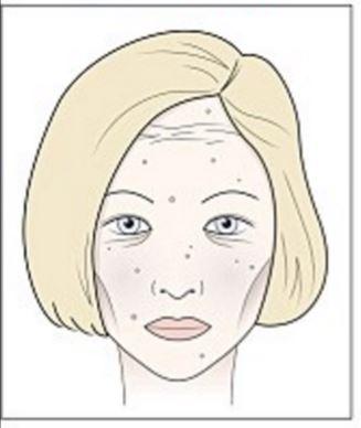 a verejték vörös foltokat okoz az arcon