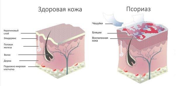 Hogyan lehet kezelni a vörös pelyhes foltokat a fején - Atheroma