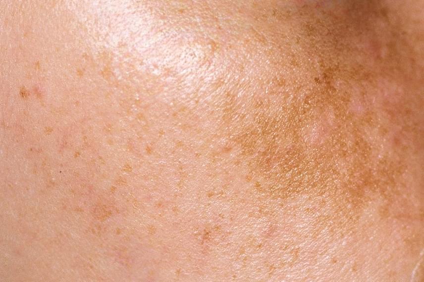a fürdőben a bőrt vörös foltok borítják