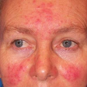 vörös pikkelyes folt az arc kezelésén