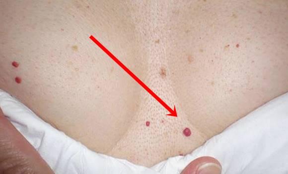vörös pontok foltja a bőrön