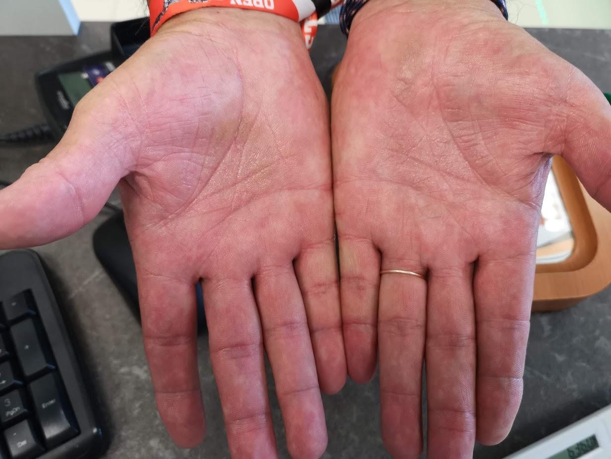 piros viszkető foltok a kezek fényképen