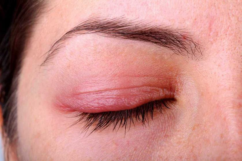 Szemhéjszéli gyulladás (blepharitis)   Szemészeti Klinika