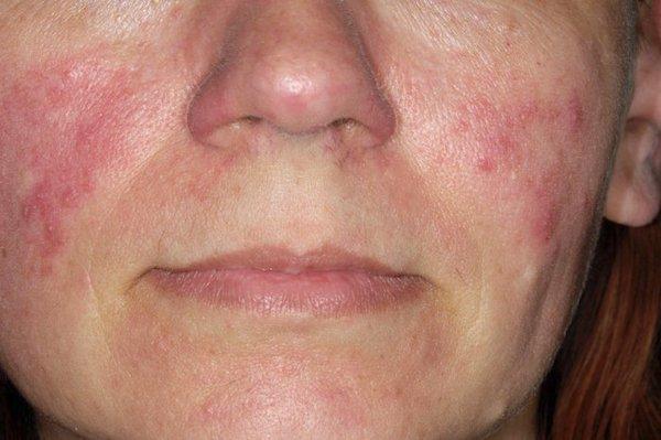 vörös foltok az arcon a száj közelében citosztatikumok pikkelysömör kezelése