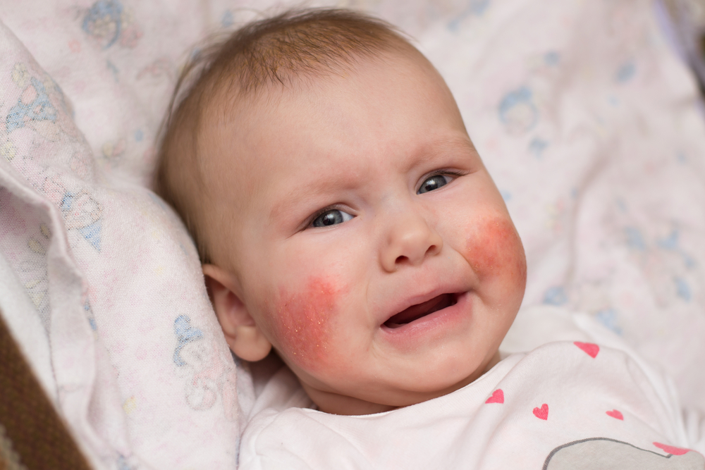 vörös foltok az arcon és a fejbőrön