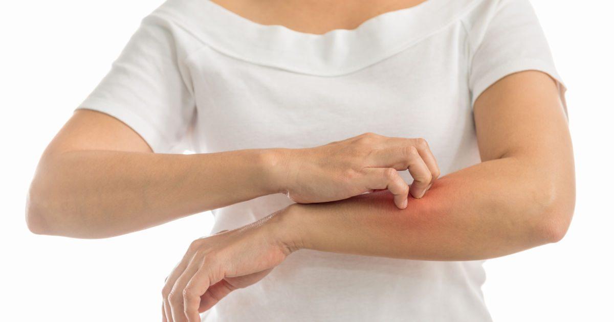 hogyan kezelje a kezén lévő vörös foltokat