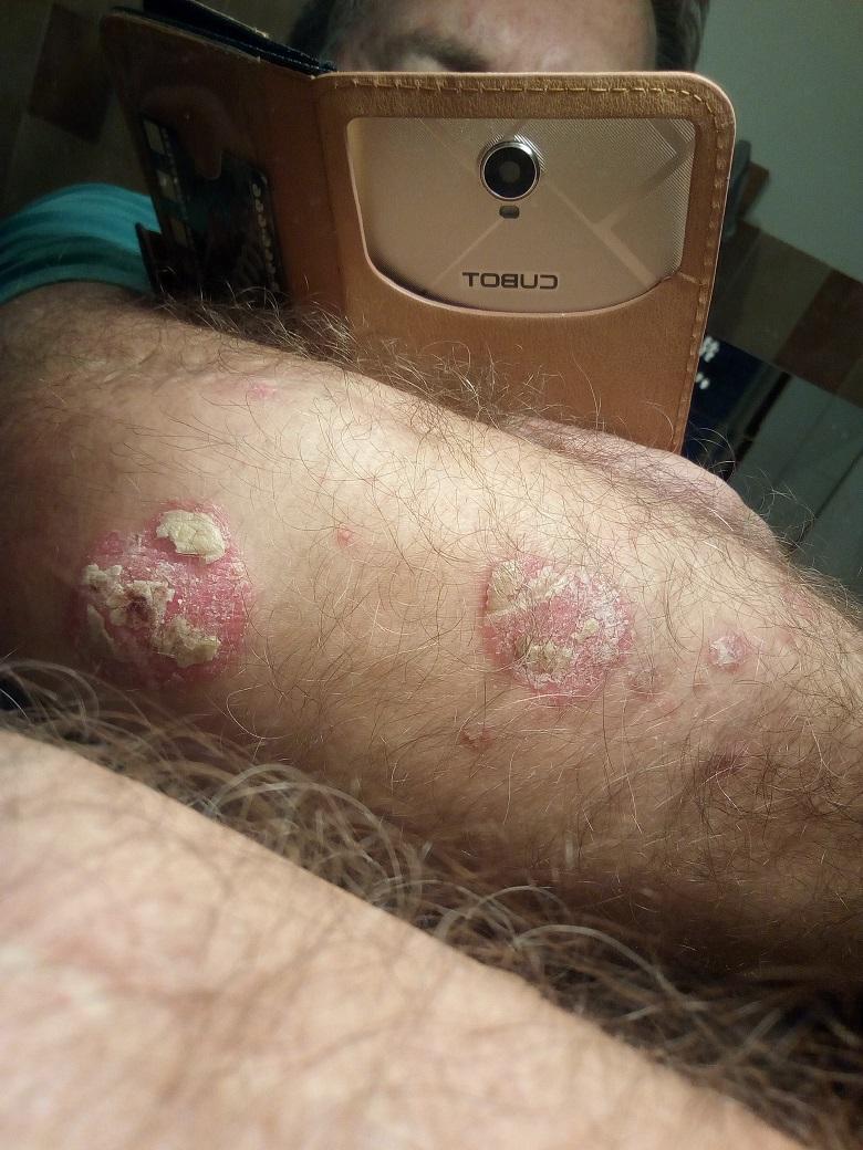 STELARA 45 mg oldatos injekció