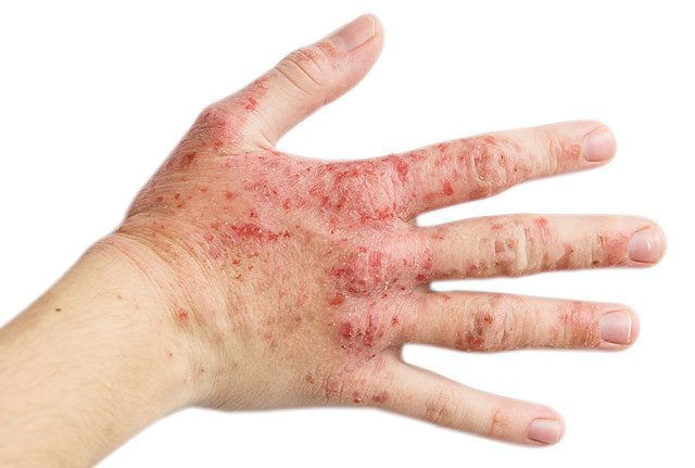 vörös durva foltok a kezeken vörös foltok a testen a kezektől kezdődtek