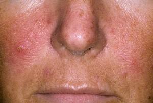 Pikkelysömör kezelése az arcon hormonokkal, Vörös foltok az arcán fázik