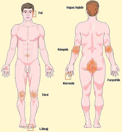 a pikkelysömör alternatív kezelése a testen)