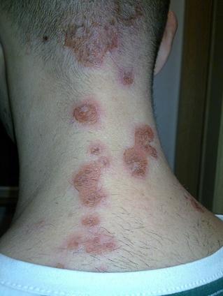 Bokán csípés jellegű, viszkető foltok :: Keresés - InforMed Orvosi és Életmód portál ::