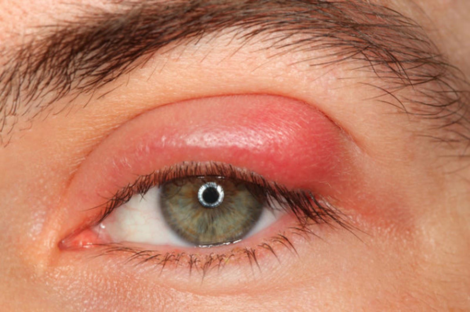 Viszket a szemem, koronavírusos vagyok? - SZERETEMASZEMEM