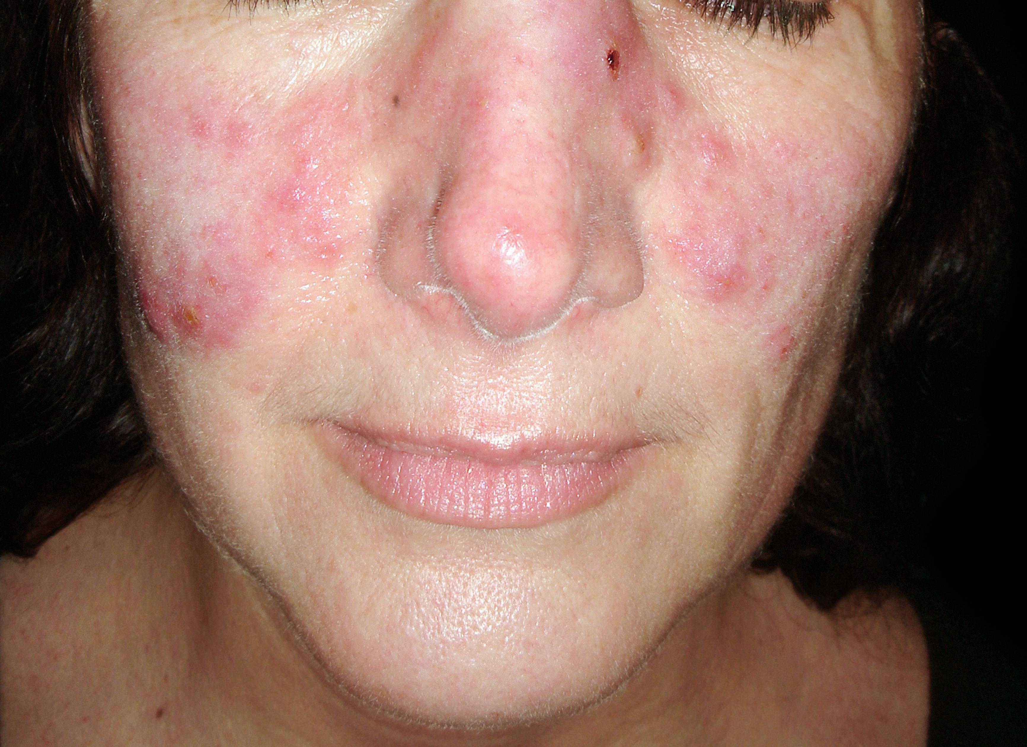 vörös folt, kiütéssel az arcon hogyan lehet eltávolítani a száraz vörös foltokat az arcon