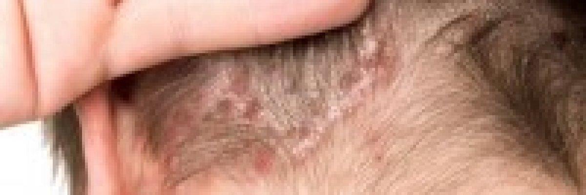 vörös folt a fejbőr kezelésén