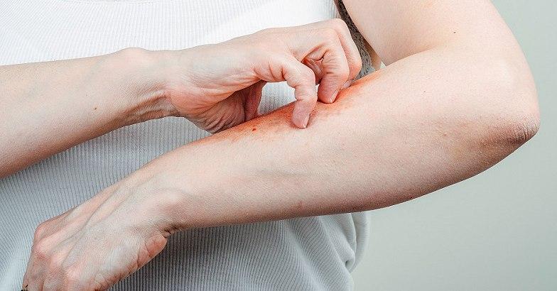 a mell alatt pikkelysömör hogyan kell kezelni
