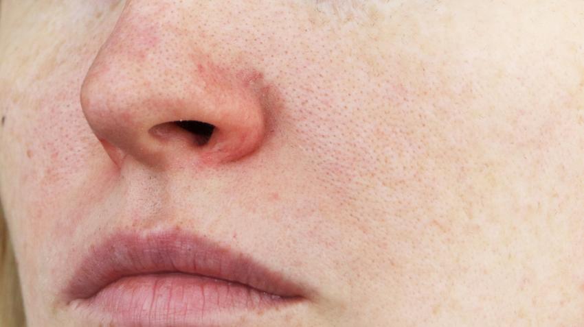 megfázásnak tűnő vörös foltok az arcon
