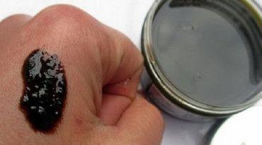 pikkelysömör orvosság ezüsttel