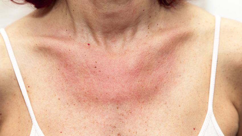 egy nagy vörös folt a nyakon és viszket)