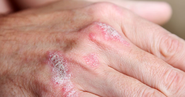 milyen népi gyógymód pikkelysömörre piros foltok jelentek meg az ujjakon mi az