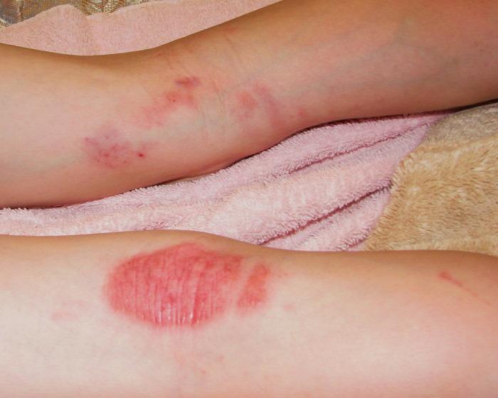 piros kis foltok a lábakon okozzák