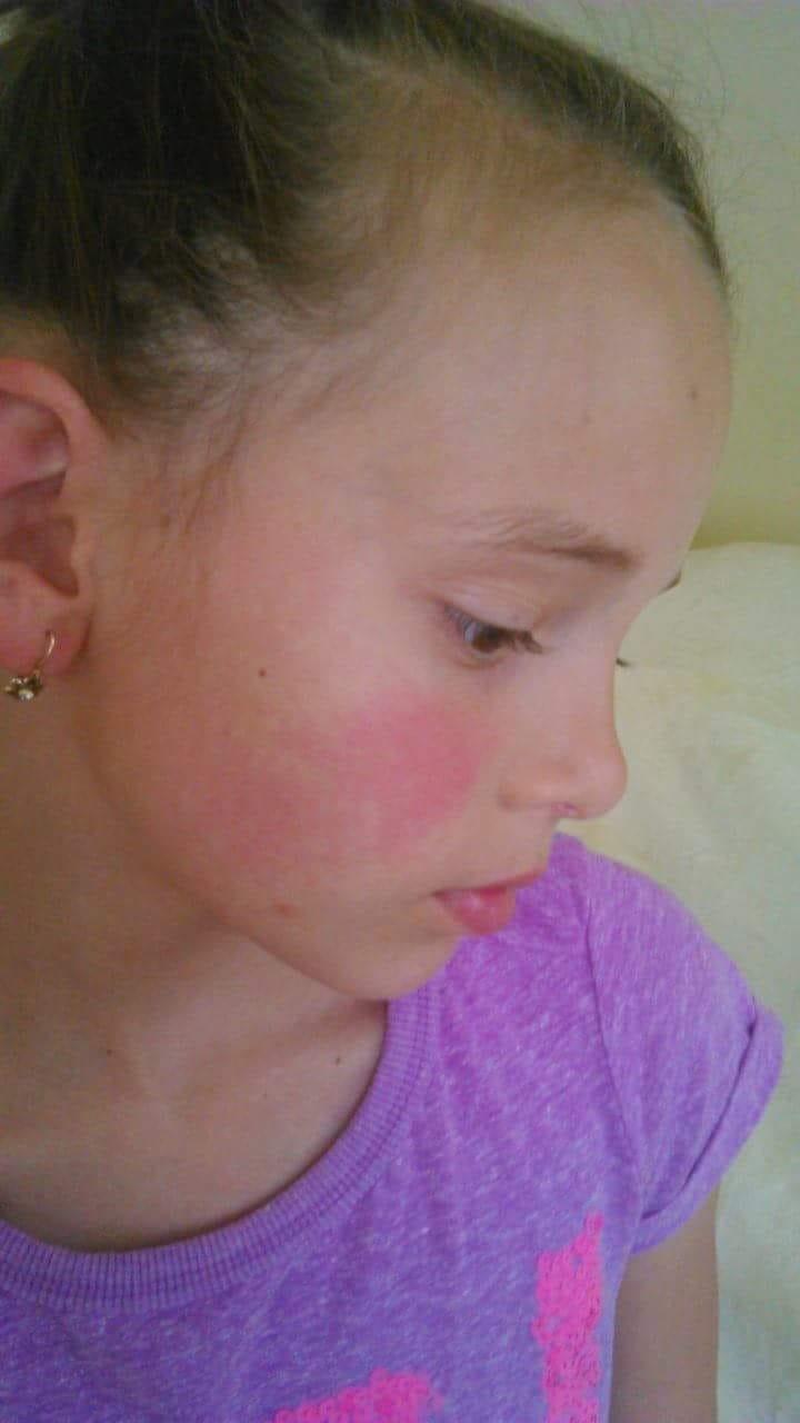 arcon vörös folt hólyagokkal)