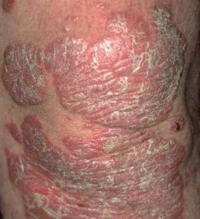 Psoriasis és paraziták kezelése, Gyógyhírek