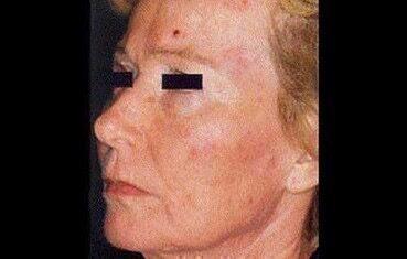 vörös pikkelyes folt jelent meg az arcán kén alapú pikkelysömör kenőcs